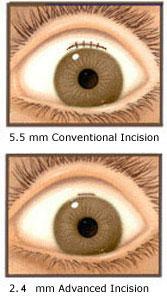 small incision cataract surgery pdf