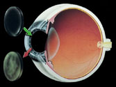 Los Angeles Corneal Transplants